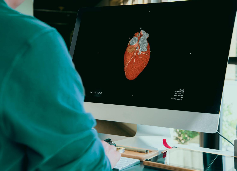 Unidad de Cardiología y Cirugía Cardiaca